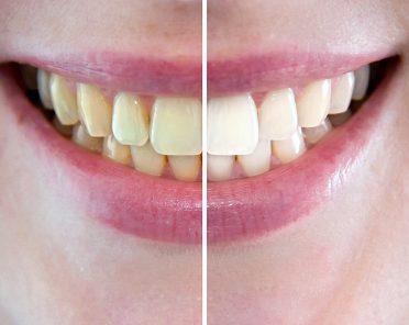 Sbiancamento dentale: quando farlo e come funziona?